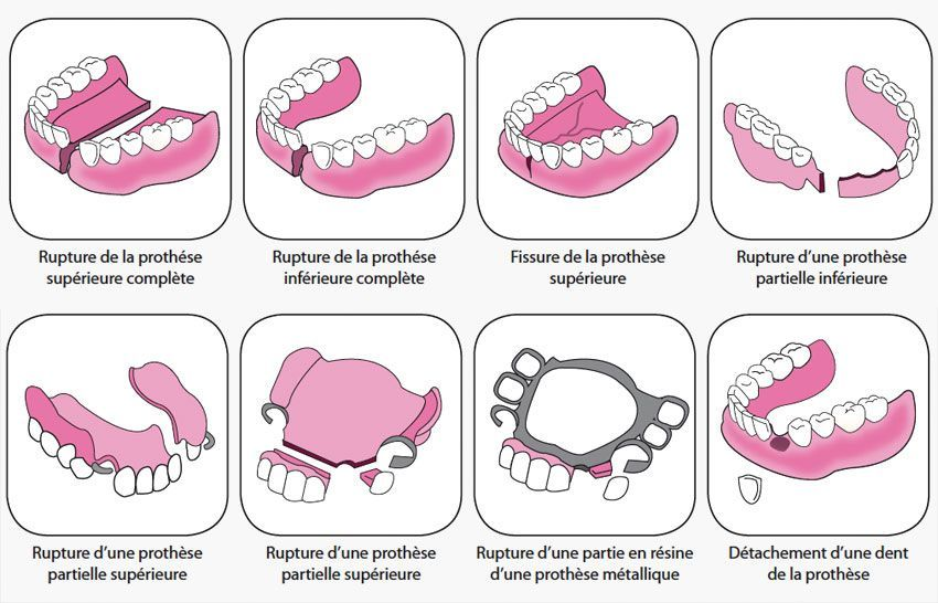 protesis dental rota